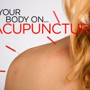 your body on... acupuncture